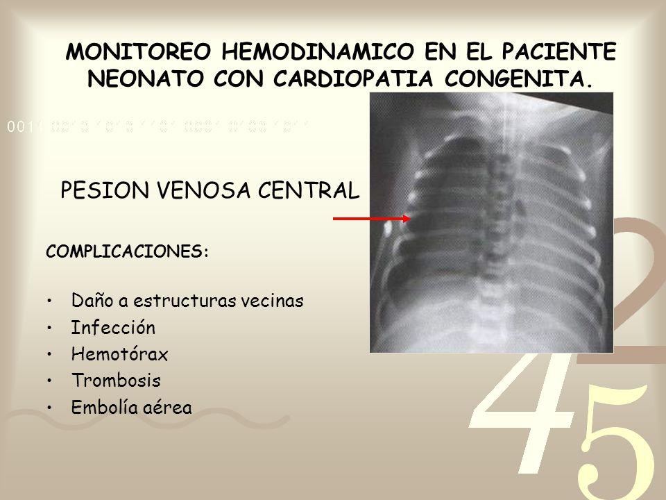 MONITOREO HEMODINAMICO EN EL PACIENTE NEONATO CON CARDIOPATIA CONGENITA. PESION VENOSA CENTRAL COMPLICACIONES: Daño a estructuras vecinas Infección He