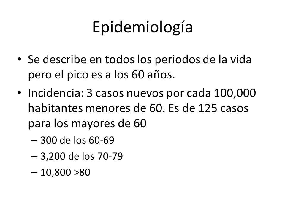 Epidemiología Se describe en todos los periodos de la vida pero el pico es a los 60 años. Incidencia: 3 casos nuevos por cada 100,000 habitantes menor