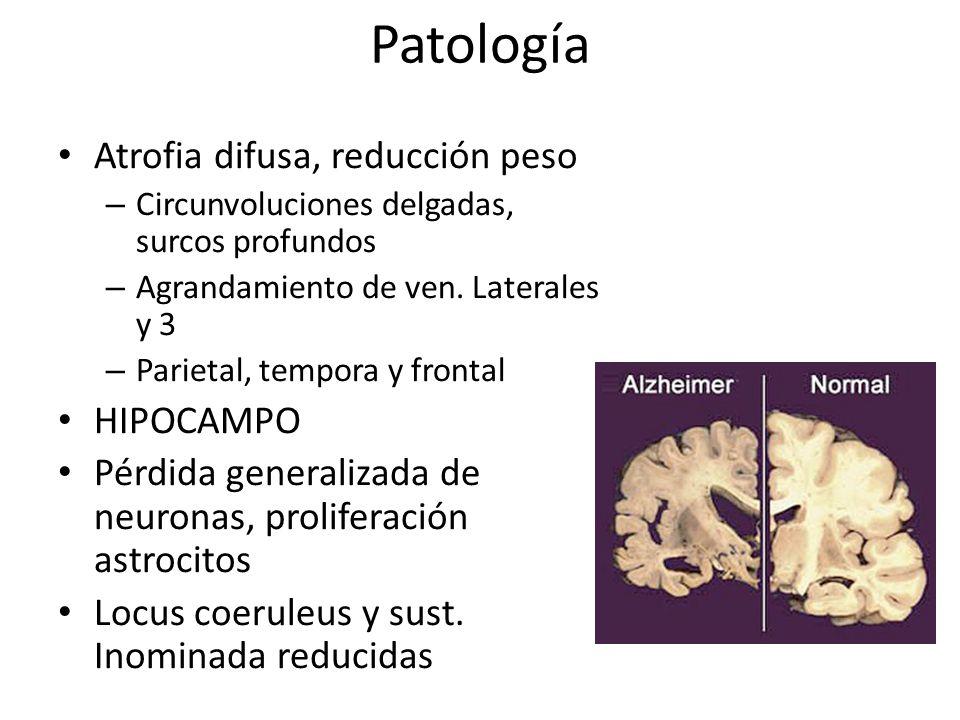 Patología Atrofia difusa, reducción peso – Circunvoluciones delgadas, surcos profundos – Agrandamiento de ven. Laterales y 3 – Parietal, tempora y fro