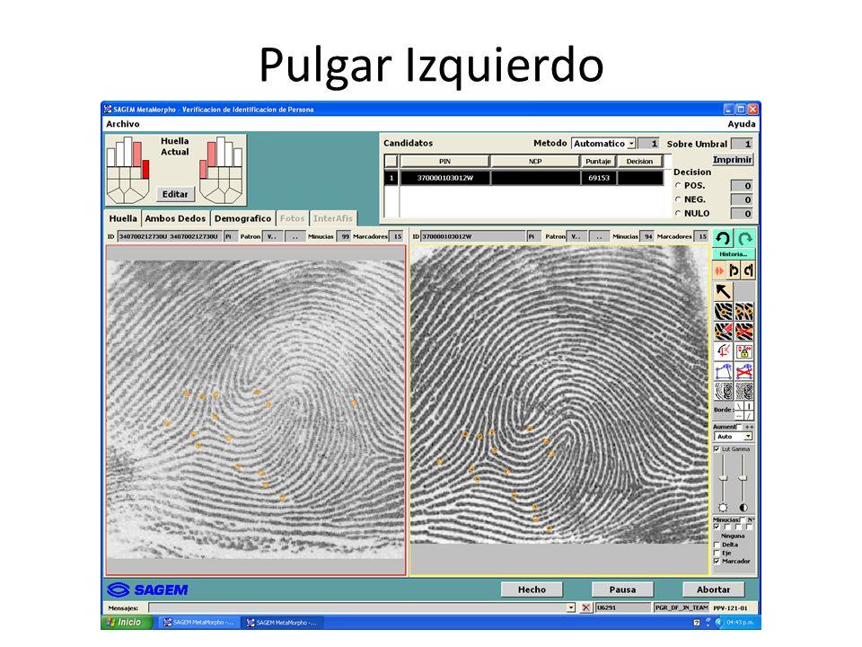 Pulgar Izquierdo