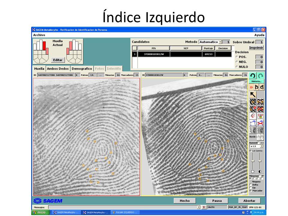 Índice Izquierdo