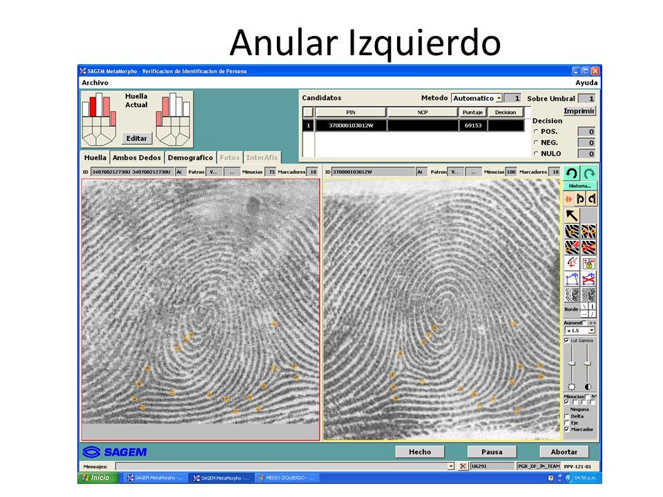 Anular Izquierdo