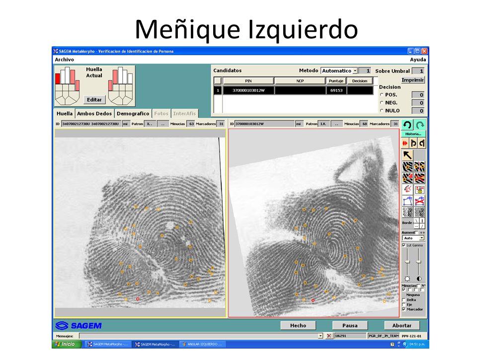 Meñique Izquierdo