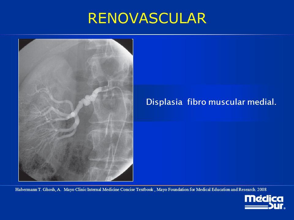 RENOVASCULAR Displasia fibro muscular medial. Habermann T. Ghosh, A. Mayo Clinic Internal Medicine Concise Textbook, Mayo Foundation for Medical Educa