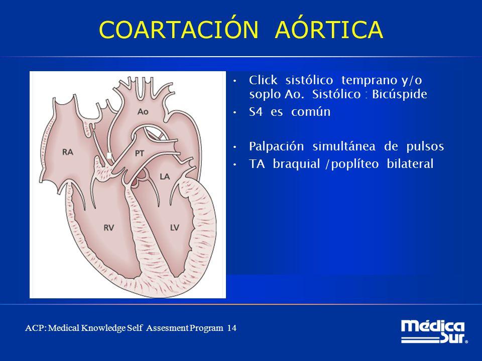 COARTACIÓN AÓRTICA Click sistólico temprano y/o soplo Ao. Sistólico : Bicúspide S4 es común Palpación simultánea de pulsos TA braquial /poplíteo bilat