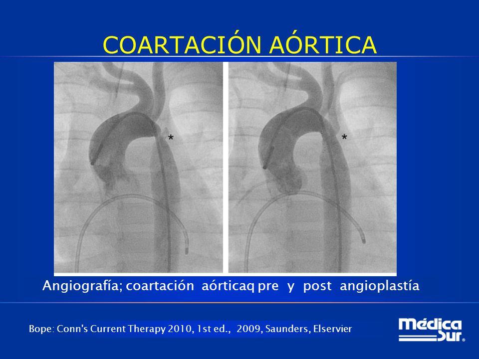 COARTACIÓN AÓRTICA Bope: Conn's Current Therapy 2010, 1st ed., 2009, Saunders, Elservier Angiografía; coartación aórticaq pre y post angioplastía