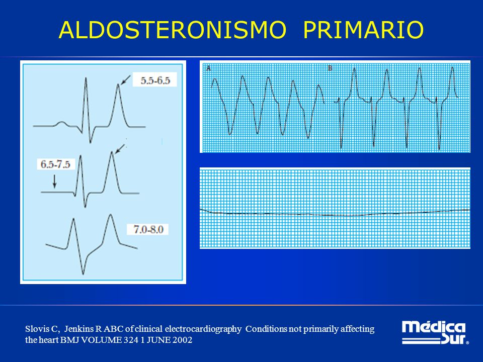 ALDOSTERONISMO PRIMARIO Slovis C, Jenkins R ABC of clinical electrocardiography Conditions not primarily affecting the heart BMJ VOLUME 324 1 JUNE 200