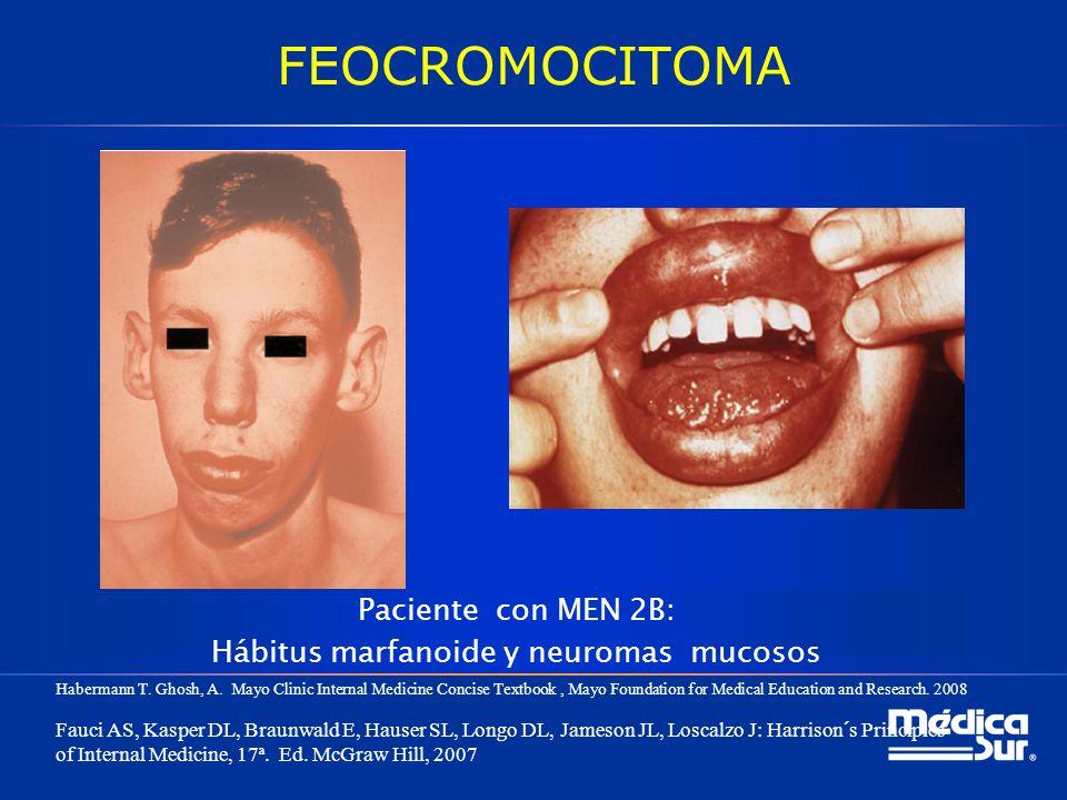 FEOCROMOCITOMA Paciente con MEN 2B: Hábitus marfanoide y neuromas mucosos Habermann T. Ghosh, A. Mayo Clinic Internal Medicine Concise Textbook, Mayo