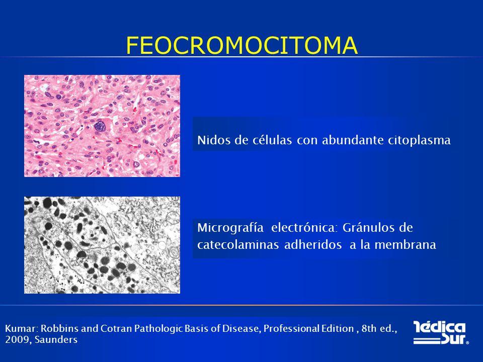 FEOCROMOCITOMA Kumar: Robbins and Cotran Pathologic Basis of Disease, Professional Edition, 8th ed., 2009, Saunders Nidos de células con abundante cit