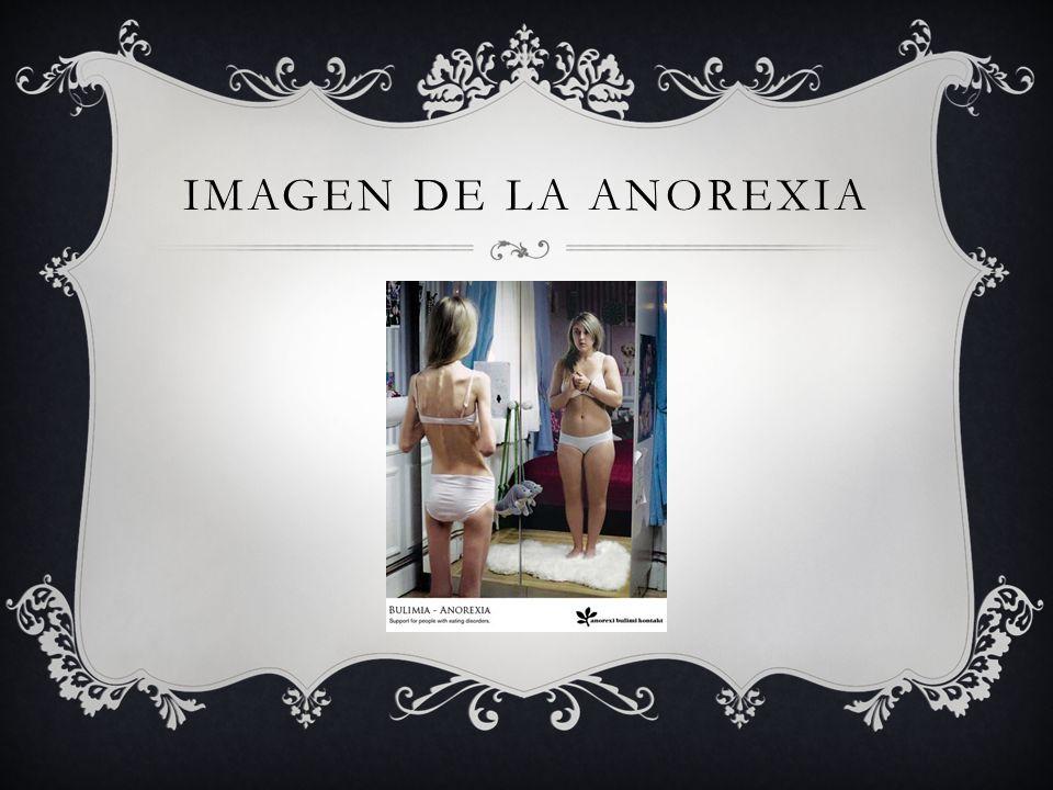 IMAGEN DE LA ANOREXIA