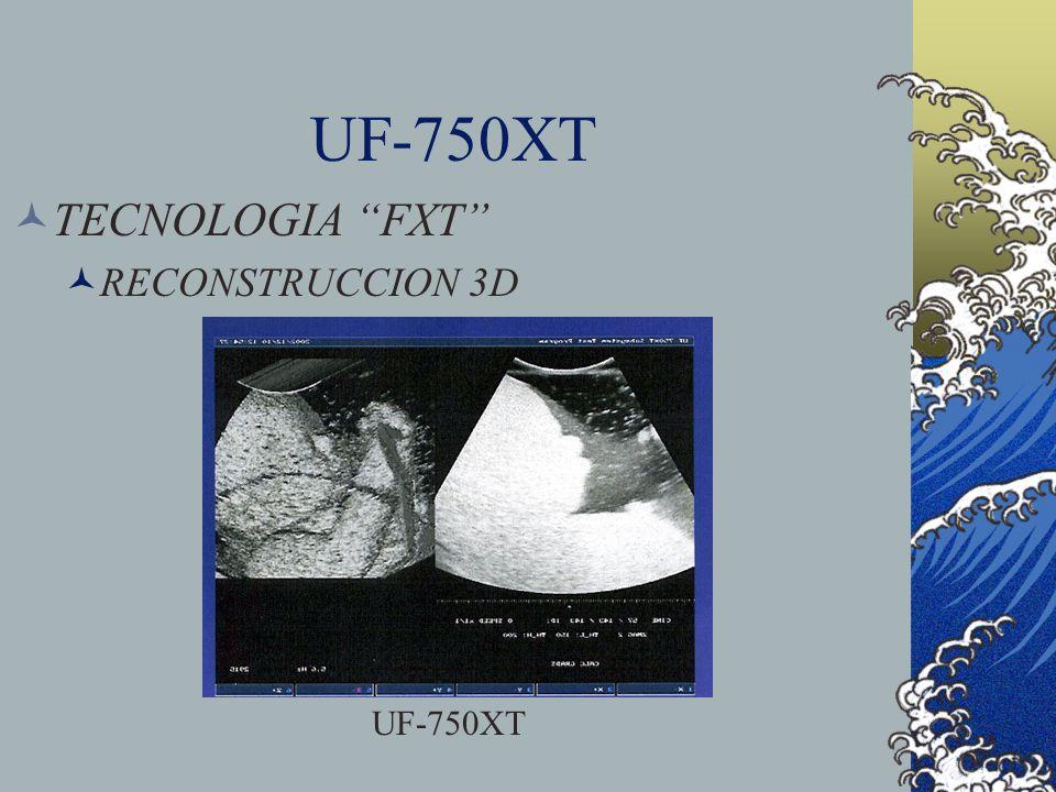 TECNOLOGIA FXT RECONSTRUCCION 3D UF-750XT