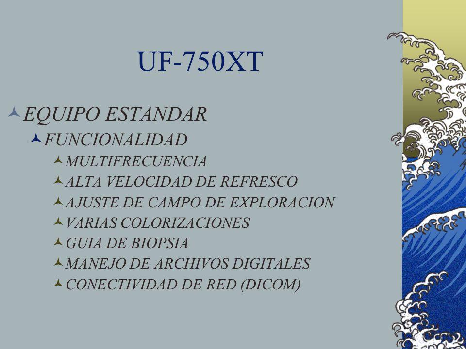 UF-750XT EQUIPO ESTANDAR FUNCIONALIDAD MULTIFRECUENCIA ALTA VELOCIDAD DE REFRESCO AJUSTE DE CAMPO DE EXPLORACION VARIAS COLORIZACIONES GUIA DE BIOPSIA