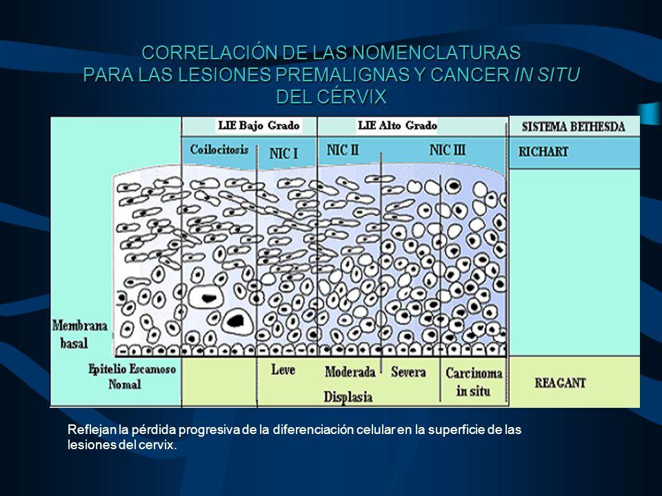 CORRELACIÓN DE LAS NOMENCLATURAS PARA LAS LESIONES PREMALIGNAS Y CANCER IN SITU DEL CÉRVIX Reflejan la pérdida progresiva de la diferenciación celular