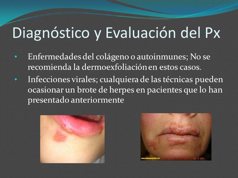 Diagnóstico y Evaluación del Px Enfermedades del colágeno o autoinmunes; No se recomienda la dermoexfoliación en estos casos. Infecciones virales; cua