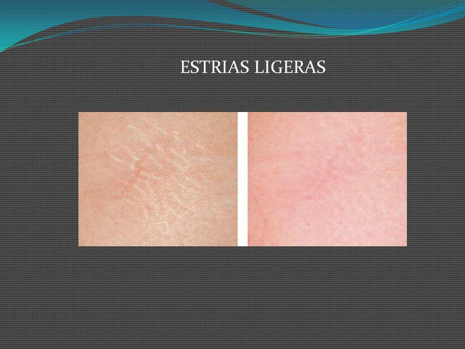 ESTRIAS LIGERAS