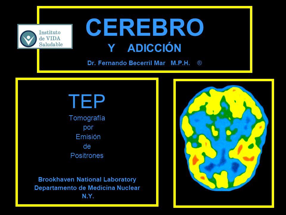 CEREBRO Y ADICCIÓN Dr. Fernando Becerril Mar M.P.H. ® TEP Tomografía por Emisión de Positrones Brookhaven National Laboratory Departamento de Medicina