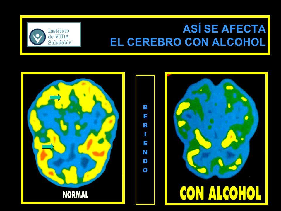 B E B I E N D O ASÍ SE AFECTA EL CEREBRO CON ALCOHOL