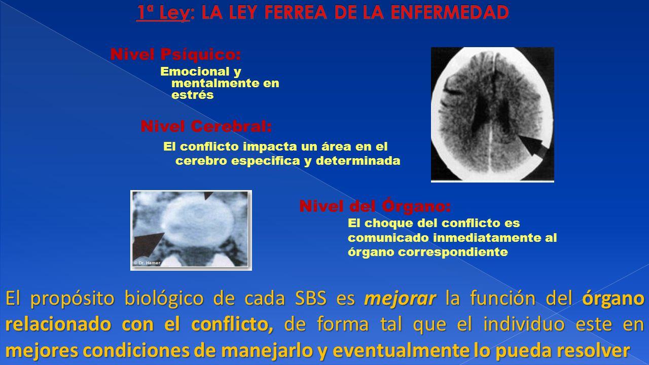 Nivel Psíquico: Emocional y mentalmente en estrés Nivel Cerebral: El conflicto impacta un área en el cerebro especifica y determinada Nivel del Órgano