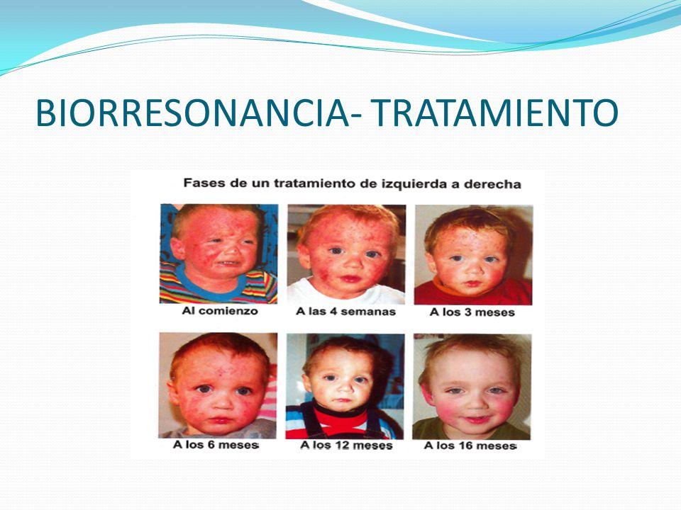 BIORRESONANCIA- TRATAMIENTO