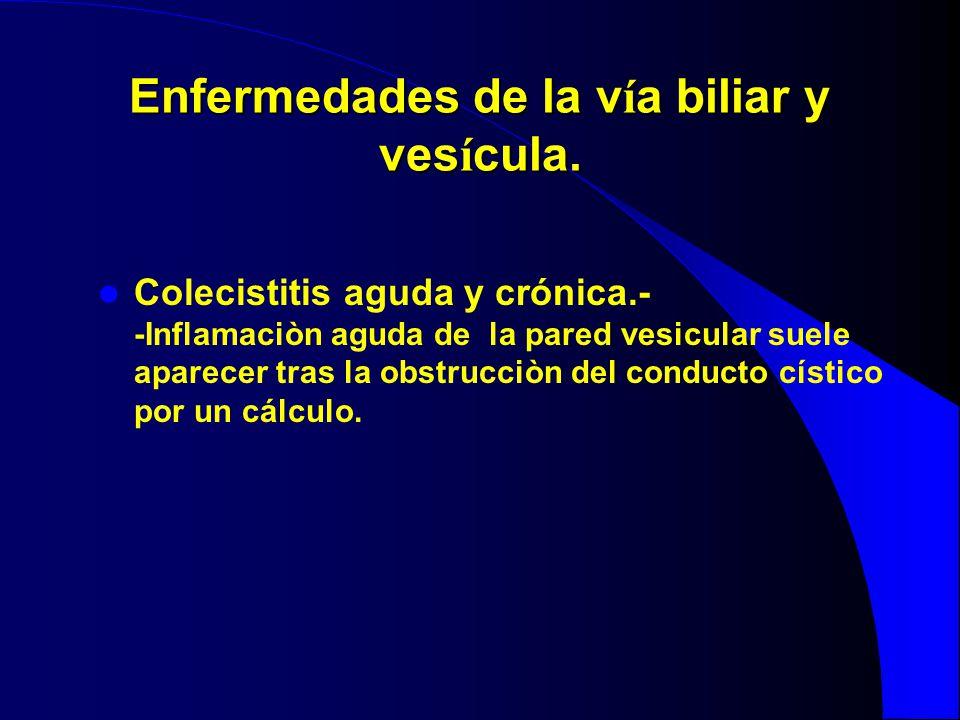 Enfermedades de la v í a biliar y ves í cula. Colecistitis aguda y crónica.- -Inflamaciòn aguda de la pared vesicular suele aparecer tras la obstrucci