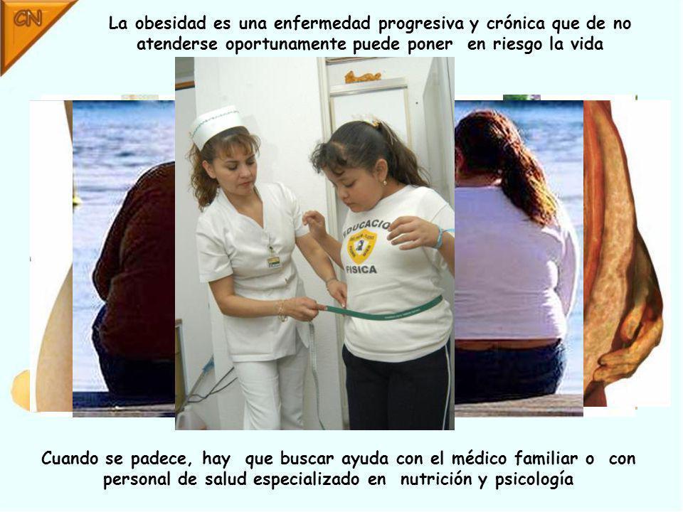 La obesidad es una enfermedad progresiva y crónica que de no atenderse oportunamente puede poner en riesgo la vida Cuando se padece, hay que buscar ayuda con el médico familiar o con personal de salud especializado en nutrición y psicología