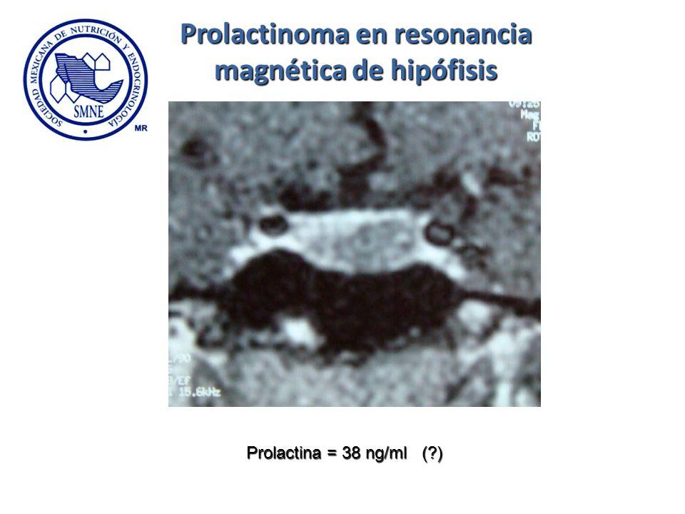 Prolactina = 38 ng/ml (?) Prolactinoma en resonancia magnética de hipófisis