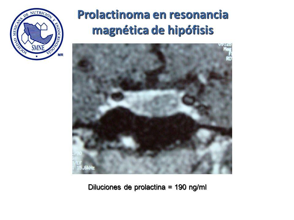 Diluciones de prolactina = 190 ng/ml Prolactinoma en resonancia magnética de hipófisis