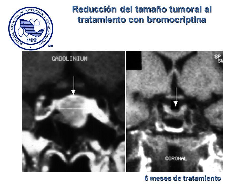 Reducción del tamaño tumoral al tratamiento con bromocriptina 6 meses de tratamiento