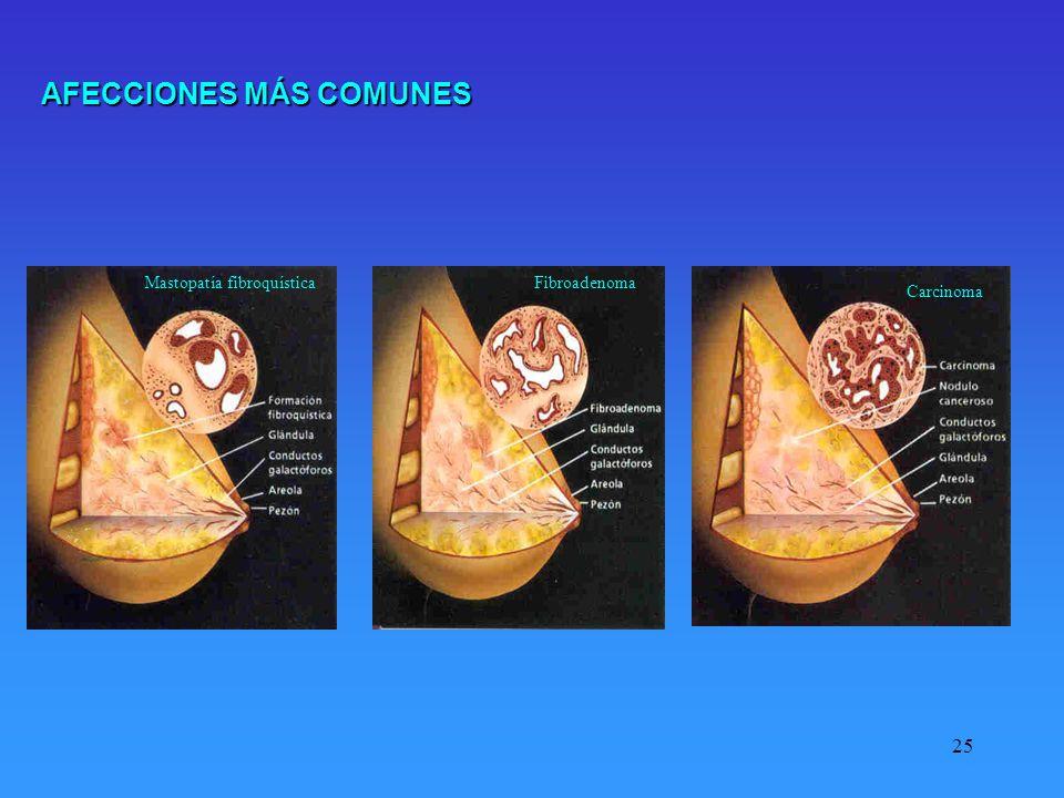 25 Carcinoma Mastopatía fibroquísticaFibroadenoma AFECCIONES MÁS COMUNES