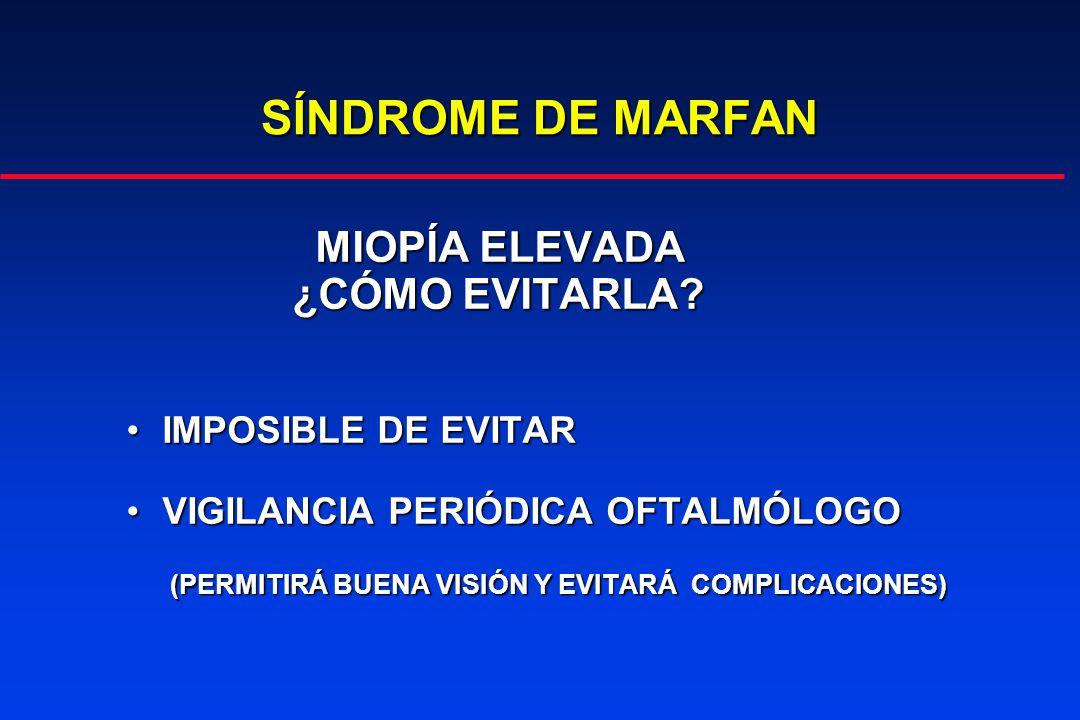 SÍNDROME DE MARFAN MIOPÍA ELEVADA MIOPÍA ELEVADA ¿CÓMO EVITARLA.