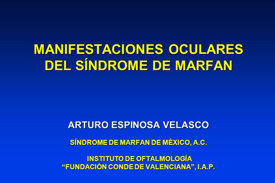 SÍNDROME DE MARFAN ANOMALÍA GENERALIZADA DEL TEJIDO CONECTIVOANOMALÍA GENERALIZADA DEL TEJIDO CONECTIVO HERENCIA AUTOSÓMICA DOMINANTEHERENCIA AUTOSÓMICA DOMINANTE 15% DE CASOS NO TIENEN FAMILIARES CON MARFÁN15% DE CASOS NO TIENEN FAMILIARES CON MARFÁN