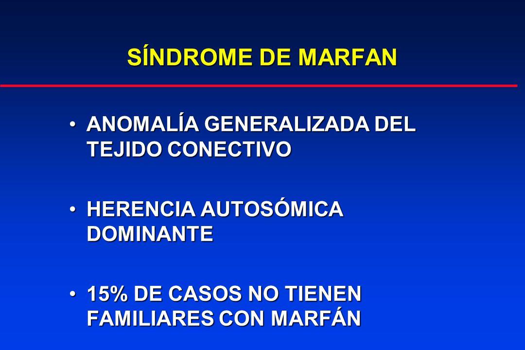 SÍNDROME DE MARFAN MANIFESTACIONES OCULARES MANIFESTACIONES OCULARES SUBLUXACIÓN DEL CRISTALINOSUBLUXACIÓN DEL CRISTALINO (HACIA ARRIBA, BILATERAL, CASI SIEMPRE SIMÉTRICA) (HACIA ARRIBA, BILATERAL, CASI SIEMPRE SIMÉTRICA) MIOPÍA AXIAL ELEVADAMIOPÍA AXIAL ELEVADA DESPRENDIMIENTO DE RETINADESPRENDIMIENTO DE RETINA