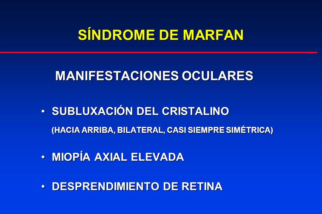 SÍNDROME DE MARFAN MANIFESTACIONES OCULARES ANOMALÍA EN EL ÁNGULOANOMALÍA EN EL ÁNGULO GLAUCOMAGLAUCOMA CÓRNEA PLANACÓRNEA PLANA