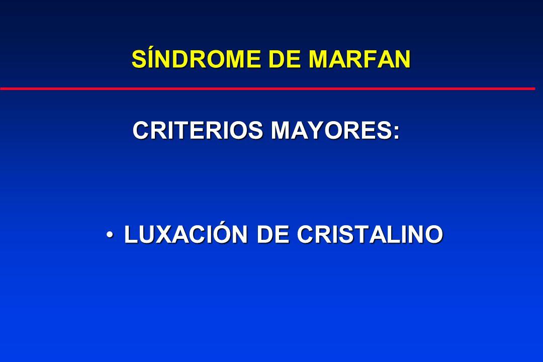 SÍNDROME DE MARFAN CRITERIOS MAYORES: CRITERIOS MAYORES: LUXACIÓN DE CRISTALINOLUXACIÓN DE CRISTALINO