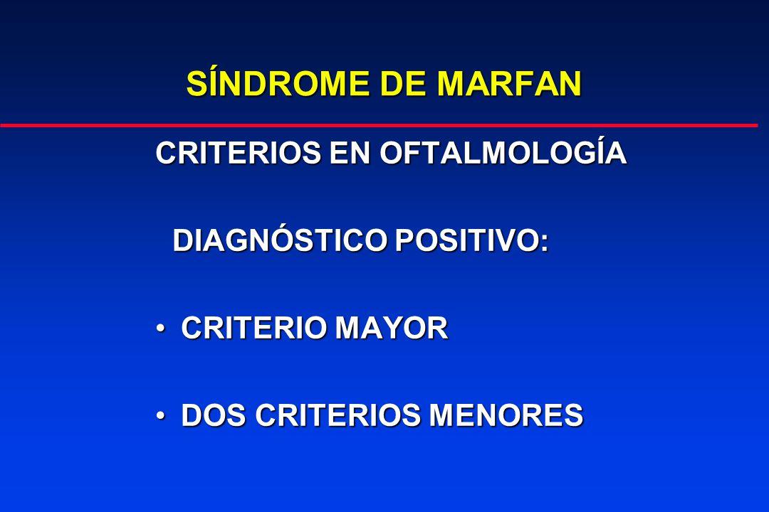 SÍNDROME DE MARFAN CRITERIOS EN OFTALMOLOGÍA DIAGNÓSTICO POSITIVO: DIAGNÓSTICO POSITIVO: CRITERIO MAYORCRITERIO MAYOR DOS CRITERIOS MENORESDOS CRITERIOS MENORES