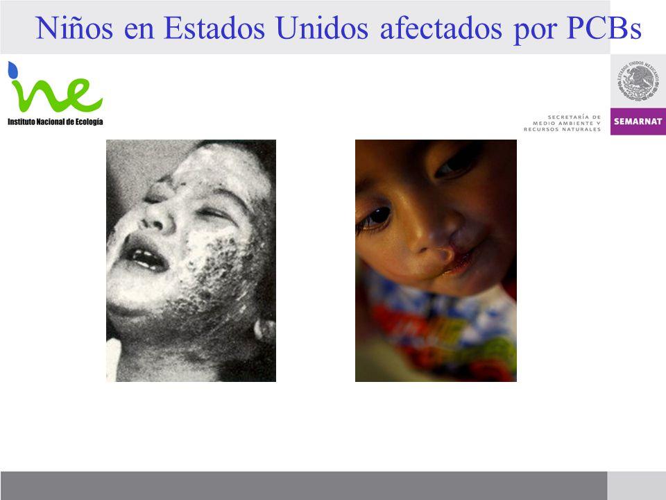 Niños en Estados Unidos afectados por PCBs