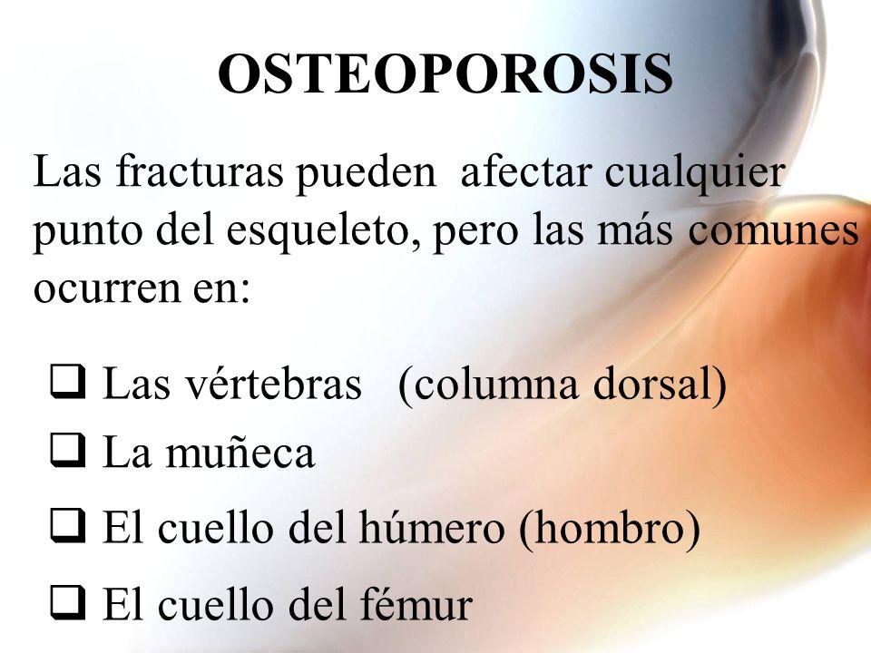 Las fracturas pueden afectar cualquier punto del esqueleto, pero las más comunes ocurren en: Las vértebras (columna dorsal) La muñeca El cuello del hú
