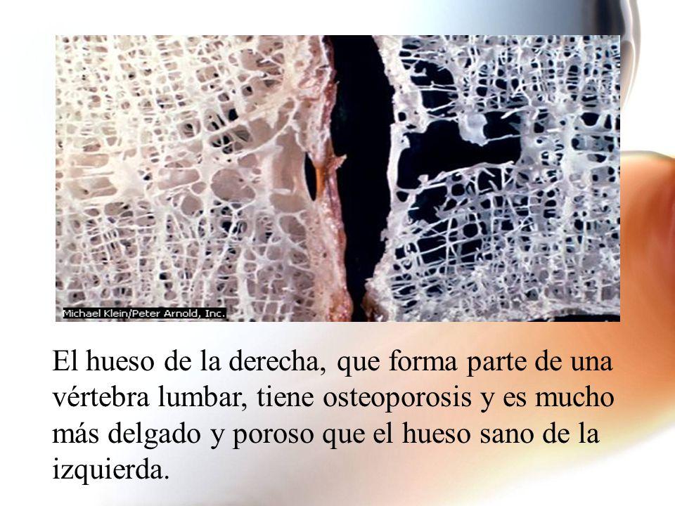 El hueso de la derecha, que forma parte de una vértebra lumbar, tiene osteoporosis y es mucho más delgado y poroso que el hueso sano de la izquierda.