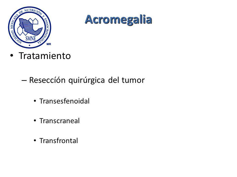Acromegalia Tratamiento – Reseccíón quirúrgica del tumor Transesfenoidal Transcraneal Transfrontal