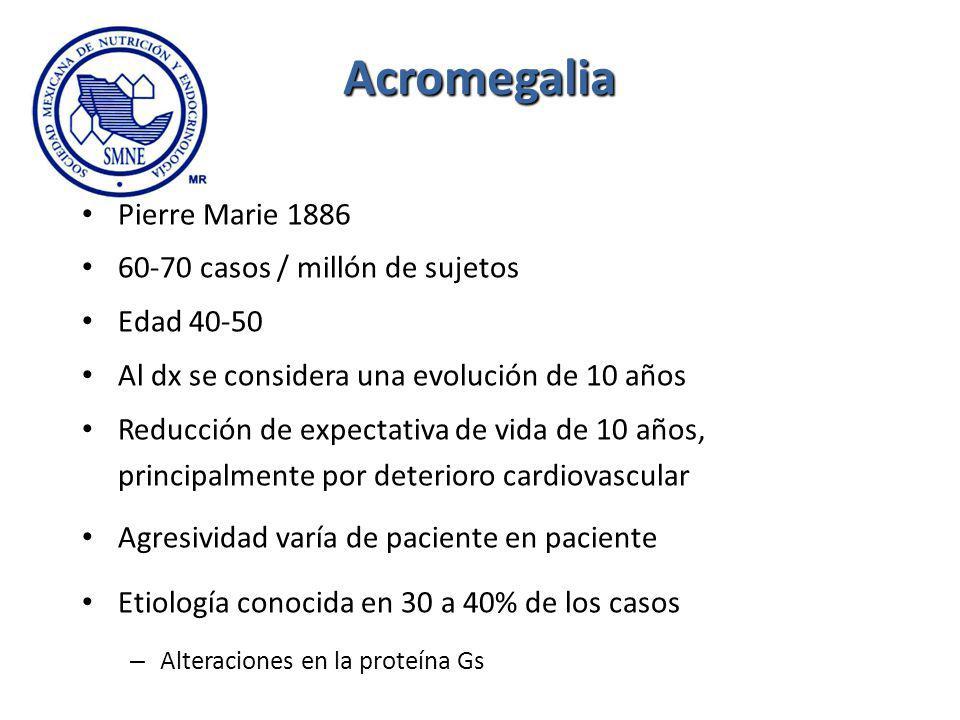 Acromegalia Pierre Marie 1886 60-70 casos / millón de sujetos Edad 40-50 Al dx se considera una evolución de 10 años Reducción de expectativa de vida