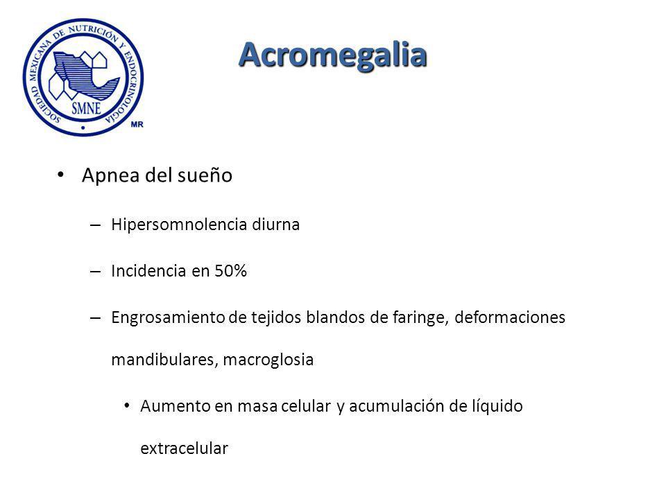 Acromegalia Apnea del sueño – Hipersomnolencia diurna – Incidencia en 50% – Engrosamiento de tejidos blandos de faringe, deformaciones mandibulares, m