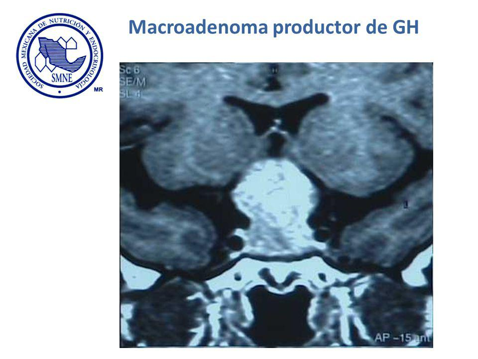 Macroadenoma productor de GH