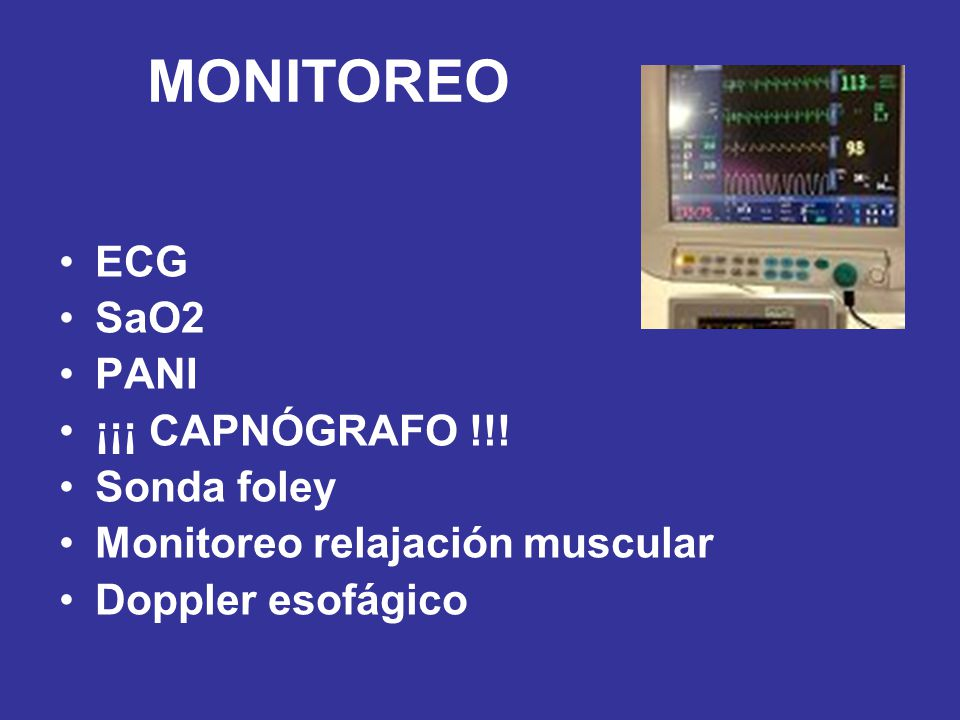 MONITOREO ECG SaO2 PANI ¡¡¡ CAPNÓGRAFO !!! Sonda foley Monitoreo relajación muscular Doppler esofágico