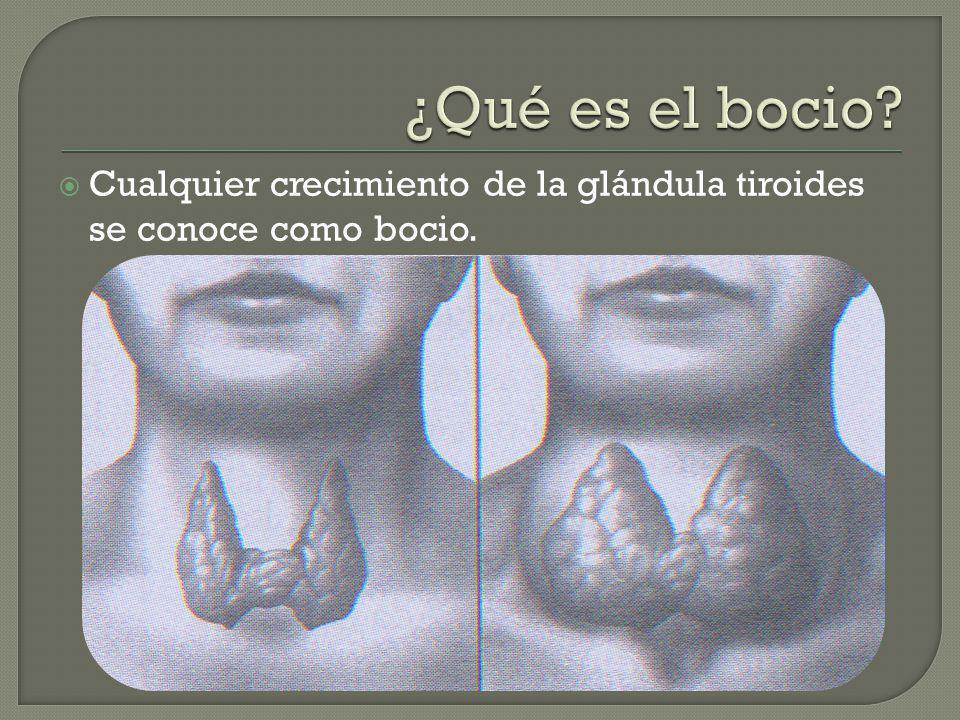 Cualquier crecimiento de la glándula tiroides se conoce como bocio.