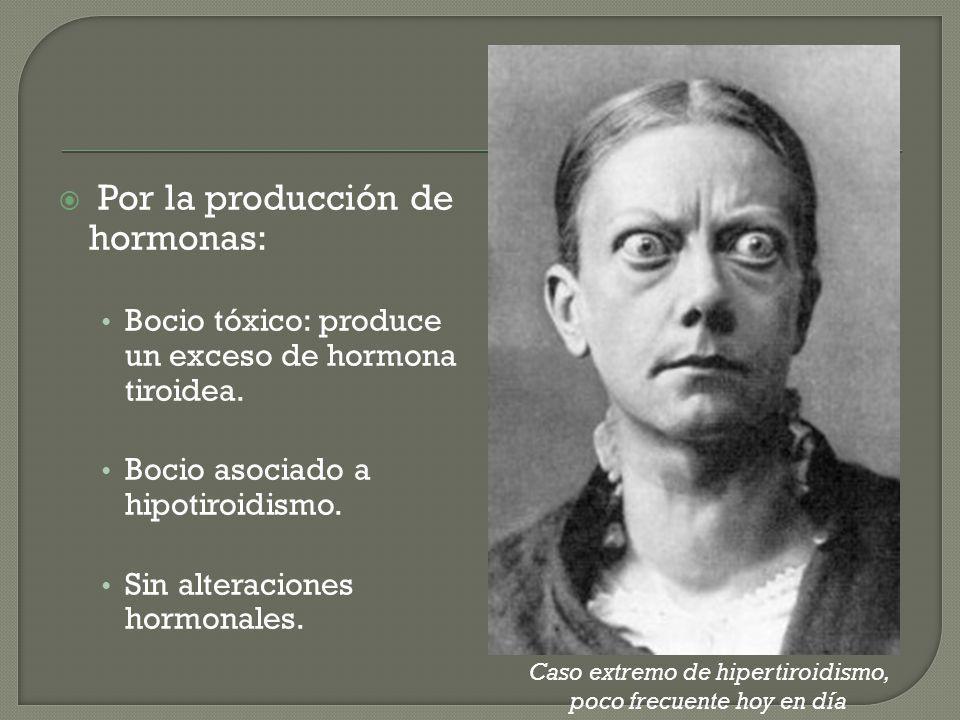 Por la producción de hormonas: Bocio tóxico: produce un exceso de hormona tiroidea. Bocio asociado a hipotiroidismo. Sin alteraciones hormonales. Caso