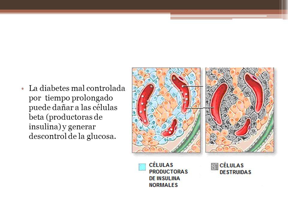 La diabetes mal controlada por tiempo prolongado puede dañar a las células beta (productoras de insulina) y generar descontrol de la glucosa.