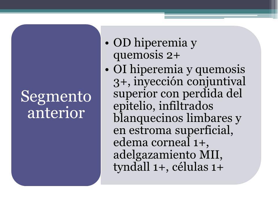 OD hiperemia y quemosis 2+ OI hiperemia y quemosis 3+, inyección conjuntival superior con perdida del epitelio, infiltrados blanquecinos limbares y en