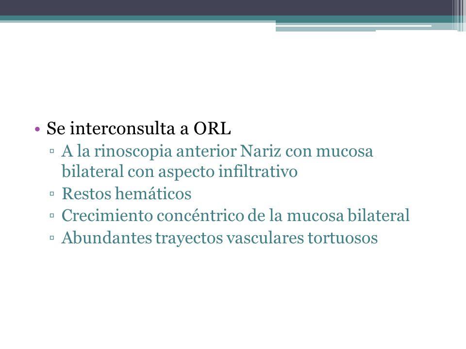 Se interconsulta a ORL A la rinoscopia anterior Nariz con mucosa bilateral con aspecto infiltrativo Restos hemáticos Crecimiento concéntrico de la mucosa bilateral Abundantes trayectos vasculares tortuosos