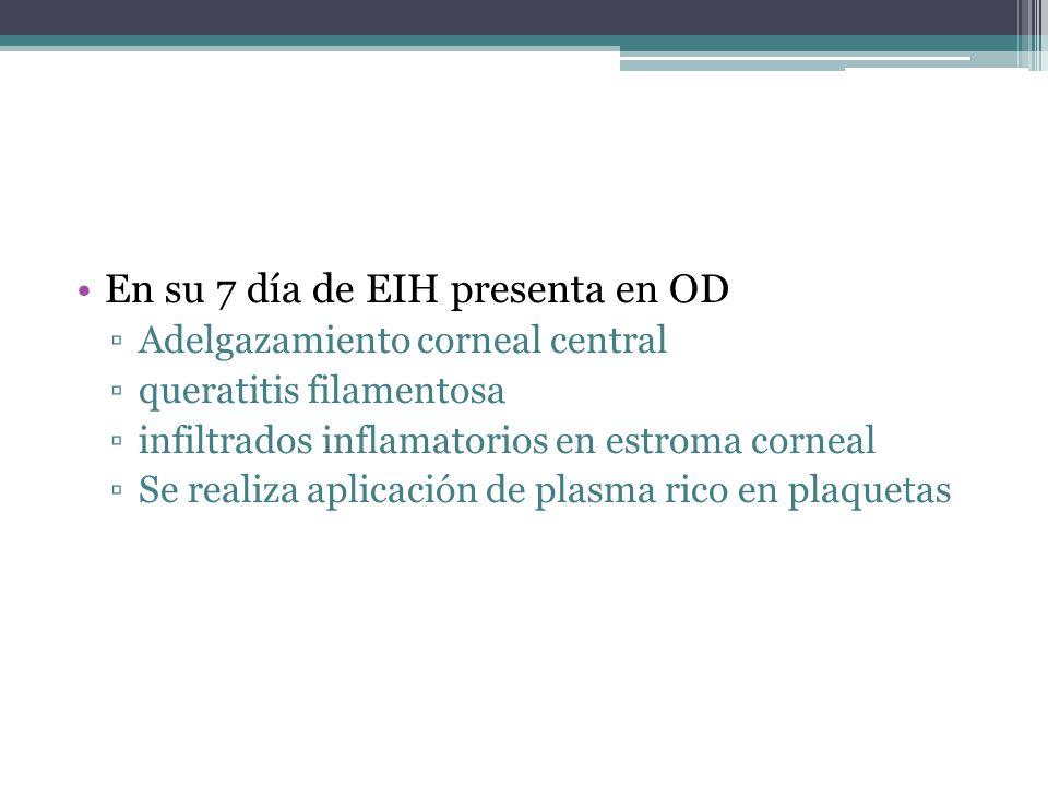 En su 7 día de EIH presenta en OD Adelgazamiento corneal central queratitis filamentosa infiltrados inflamatorios en estroma corneal Se realiza aplicación de plasma rico en plaquetas