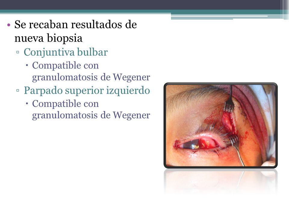 Se recaban resultados de nueva biopsia Conjuntiva bulbar Compatible con granulomatosis de Wegener Parpado superior izquierdo Compatible con granulomat